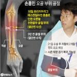 손흥민, 오늘 서울서 오른팔 수술